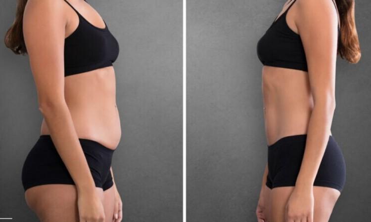 Perder 5 kilos en una semana ¿sano o inadecuado?