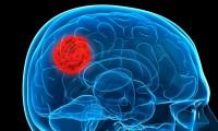 Esto debes saber de los tumores cerebrales