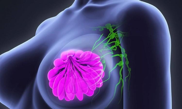 Distinguir los subtipos de cáncer de mama mejora las posibilidades de tratamiento