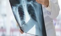 Presentan tratamiento para cáncer de pulmón