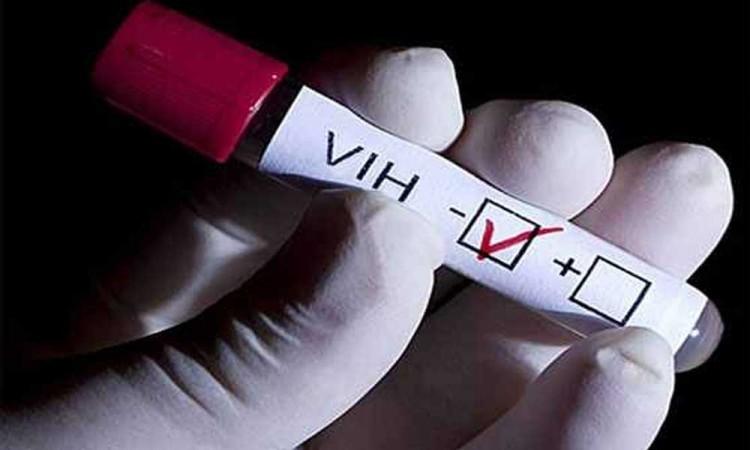Al menos 95 % de quienes viven con VIH se han infectado de papiloma humano