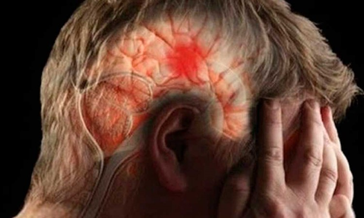 Personas con COVID-19 sufren derrames cerebrales