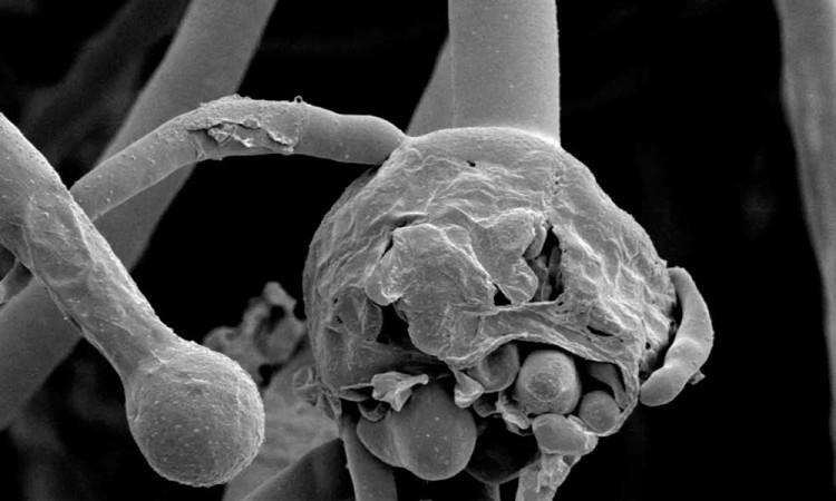 Aumentan infecciones por mucormicosis en India