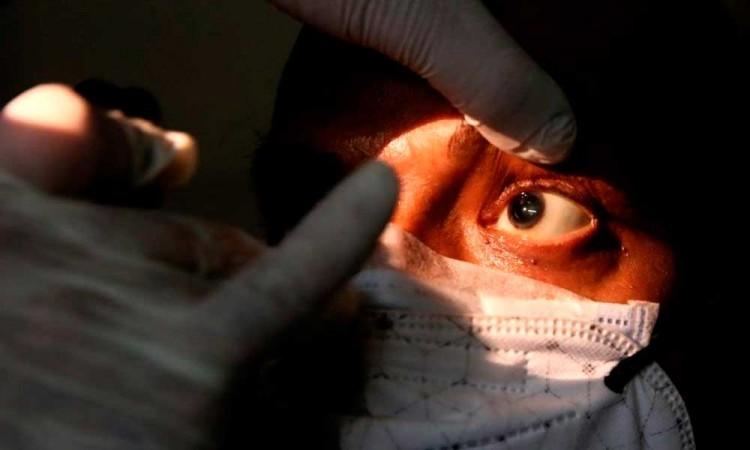 Confirman en Honduras primer caso de mucormicosis conocido como hongo negro en paciente recuperado de covid