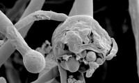 Argentina confirma un caso de hongo negro asociado a covid-19