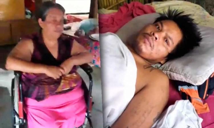 Sin trabajo, heridos y una pierna amputada: madre e hijo esperan un milagro