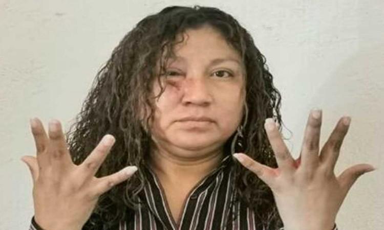 Denuncia regidora de obras públicas de Altepexi ser víctima de agresiones