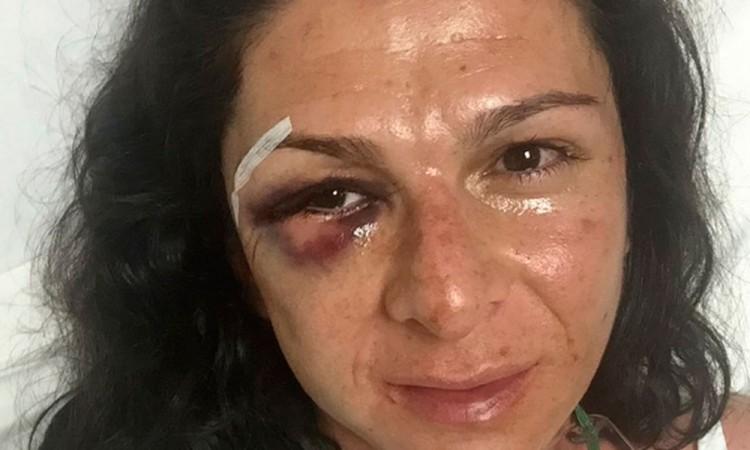 Ordenan prisión preventiva a agresor de Ana Guevara