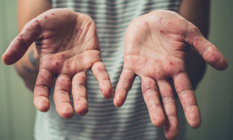 Van 172 casos de sarampión en México