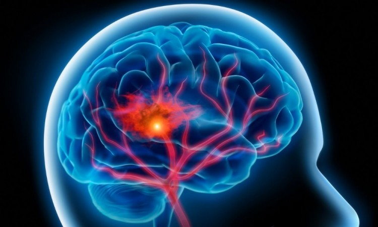 Derrames cerebrales, más graves en pacientes con Covid-19: experto