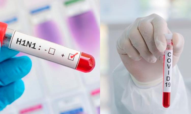 Confirman primer paciente con influenza y COVID-19 en México