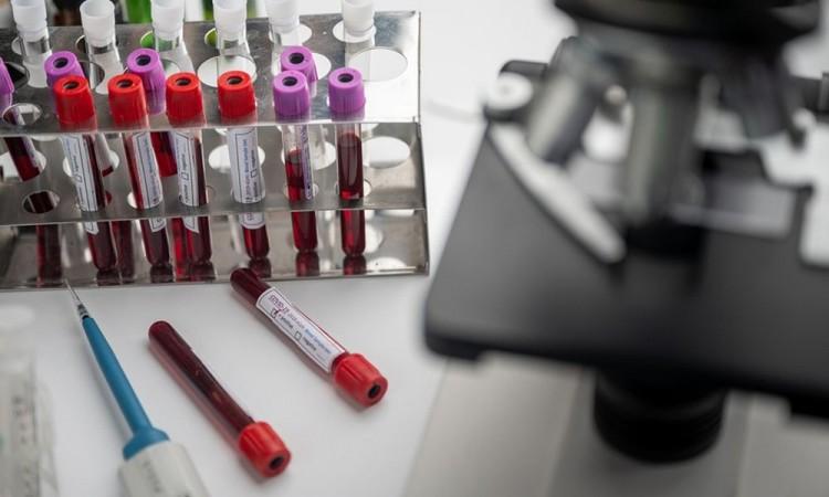 Para obtener el plasma hay que realizar un procedimiento llamado aféresis.