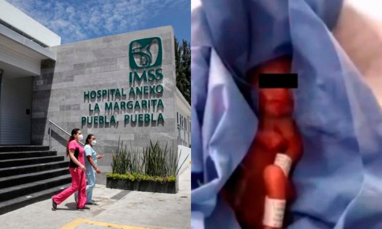IMMS informa sobre Bebé dado por muerto en La Margarita