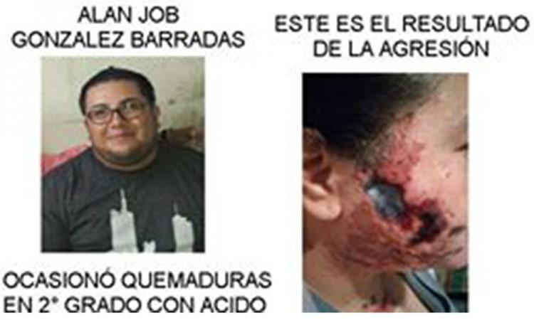 Cae sujeto que agredió a su expareja con ácido en el rostro