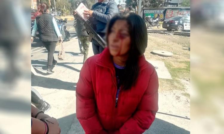 Sufre mujer asalto violento; roban bicicleta y le cortan la cara