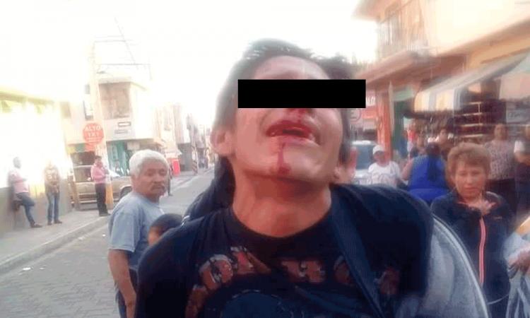 Salvan uniformados a presunto ladrón de ser linchado en Tecamachalco