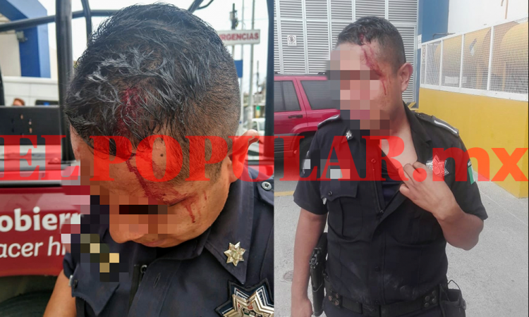 Policía estatal resulta herido al ser golpeado con tubo