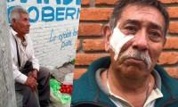 En Atlixco, dos adultos mayores fueron víctimas de fraudes y les quitaron todo su dinero