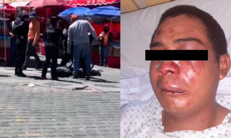 Golpean brutalmente a joven de 17 años y lo llevan al hospital
