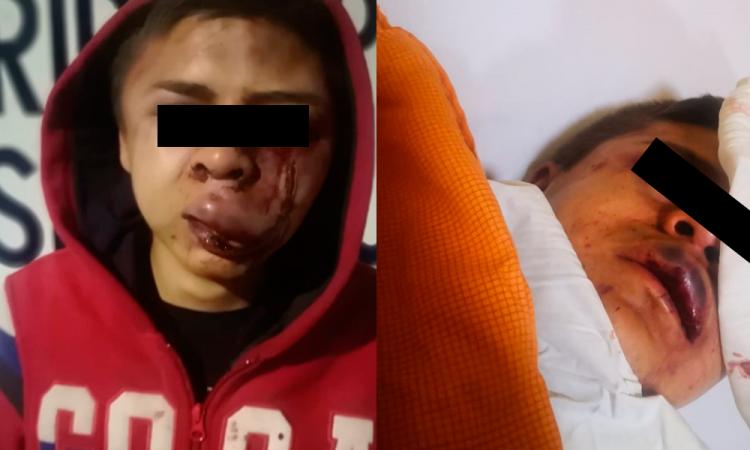 Acusan a policías de Texmelucan por abuso de autoridad
